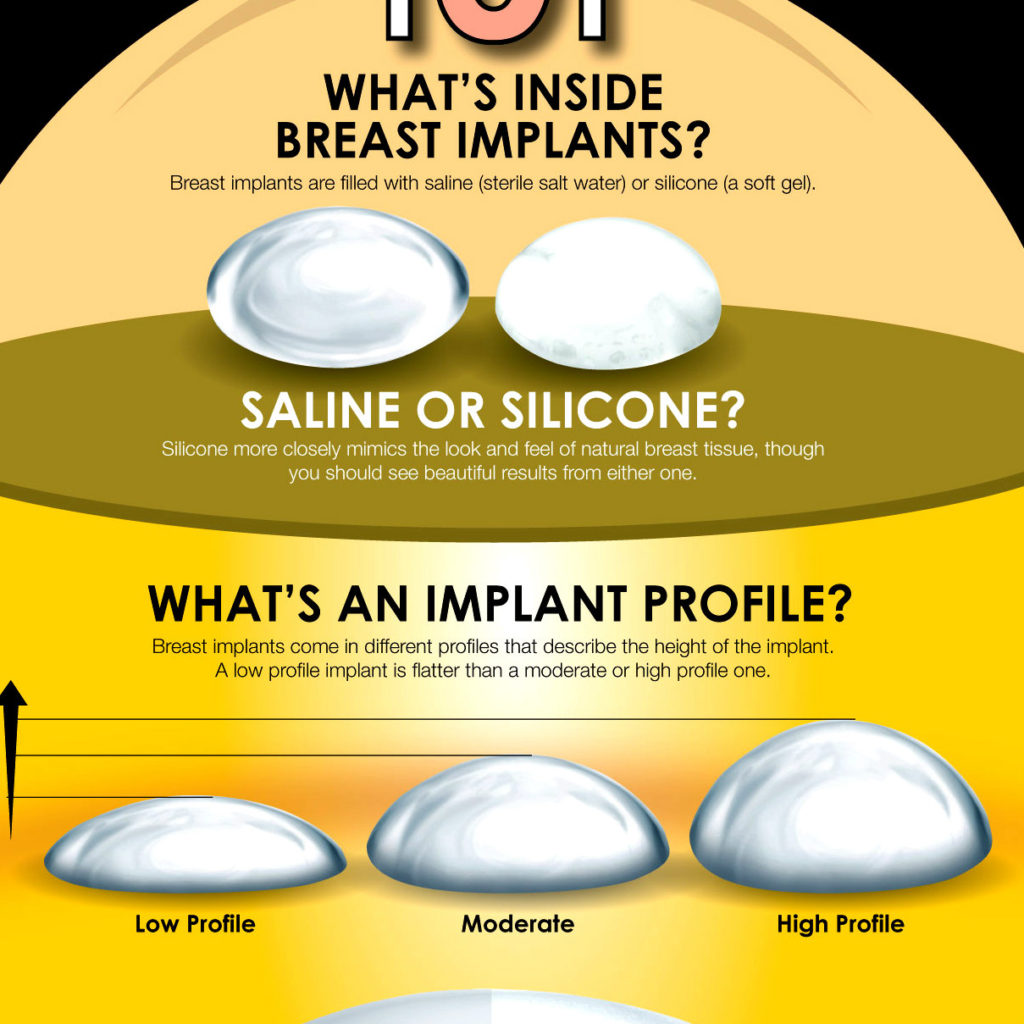 breast implants infographic