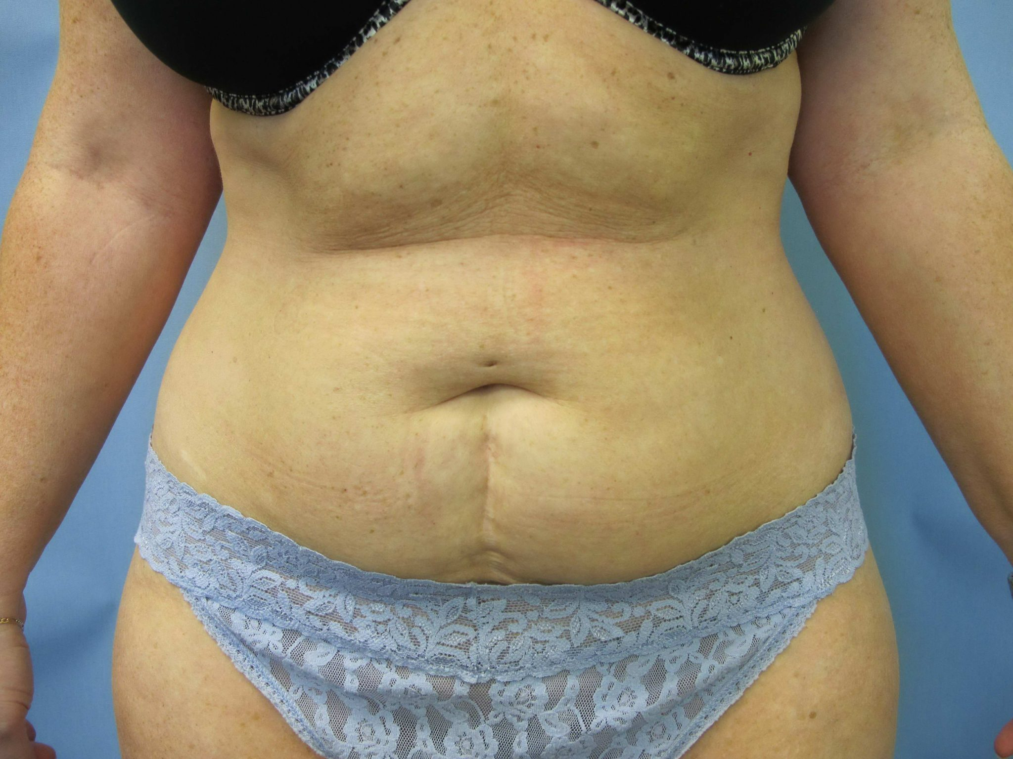 Tummy Tuck Patient Photo - Case 84 - before view-