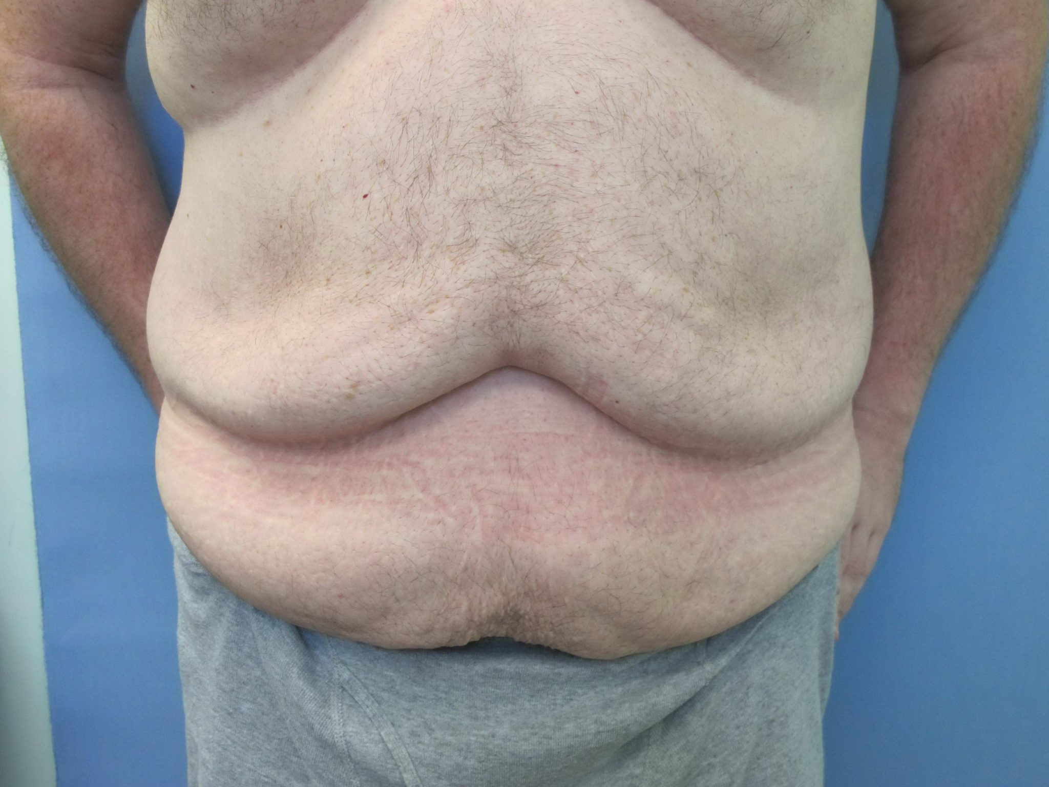 Tummy Tuck Patient Photo - Case 76 - before view-