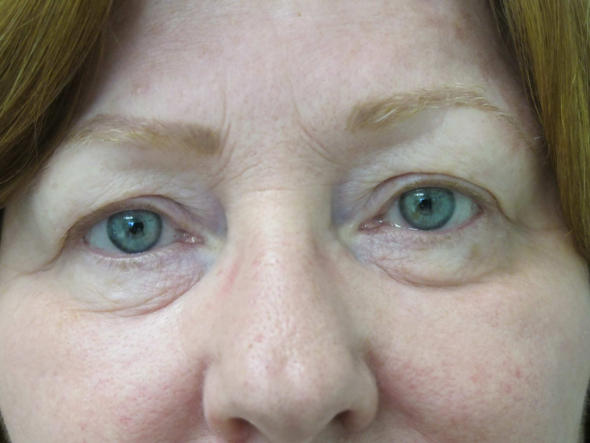 Eyelid Surgery Patient Photo - Case 116 - before view-