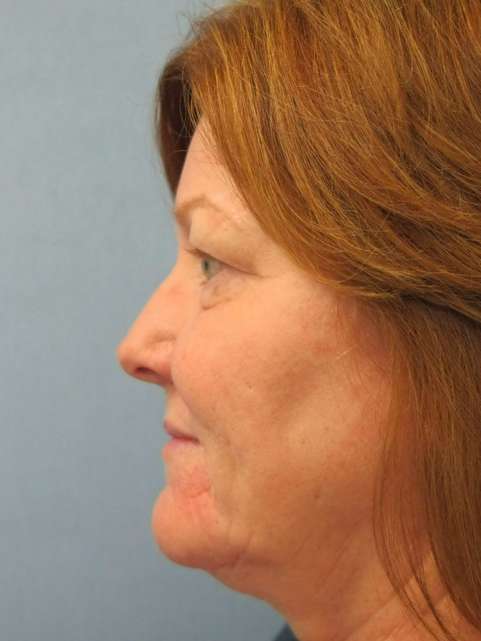 Eyelid Surgery Patient Photo - Case 116 - before view-1