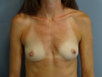 Breast Augmentation - Case 165 - Before