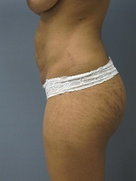 Tummy Tuck Patient Photo - Case 166 - before view-1