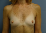 Breast Augmentation - Case 167 - Before
