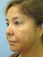 Facelift - Case 137 - Before