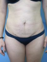 Liposuction - Case 115 - Before