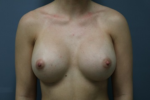 Breast Augmentation - Case 164 - After
