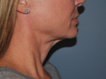 Laser Treatments - Case 8507 - Before