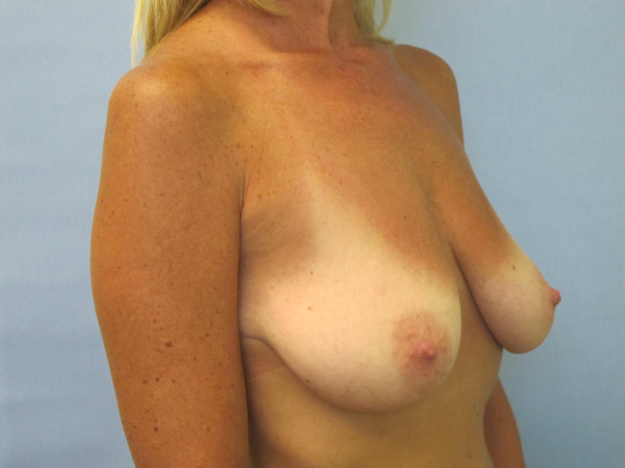 Breast Lift with Augmentation Patient Photo - Case 158 - after view-1