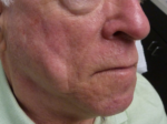 Injectable Fillers - Case 9148 - After