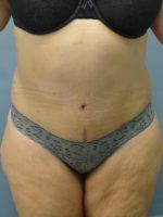 Avelar Tummy Tuck - Case 9234 - After