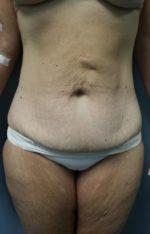 Avelar Tummy Tuck - Case 9244 - Before