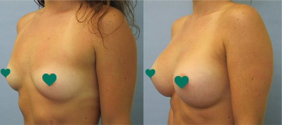 Breast Augmentation in Tampa