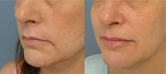 Injectable Filler in Tampa