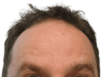 BOTOX® Cosmetic - Case 16743 - After